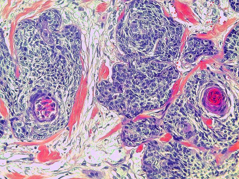 Krebszellen eines Kopf-Hals-Tumores