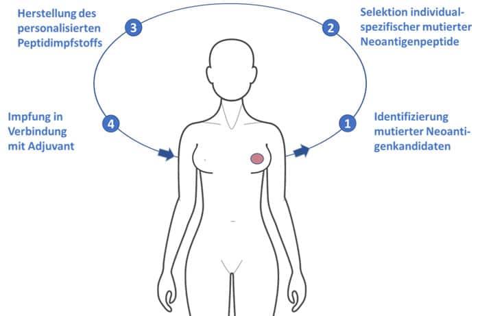 Immuntherapie bei Krebs